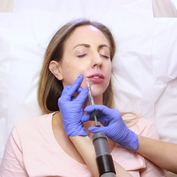 How I Maintain My Lip Fillers