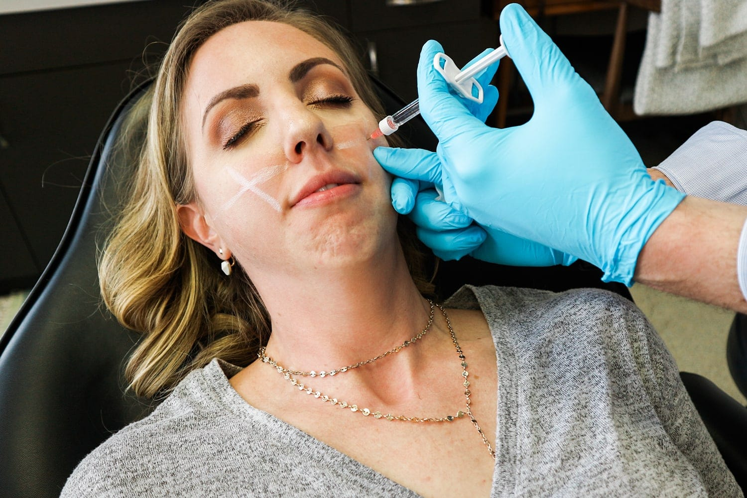 Popular Houston beauty blogger gets cheek filler